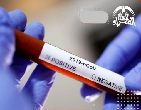 """Covid-19""""16 AVRIL 2021"""" : 0 décès, 31 cas positifs et 13 cas de guérison"""