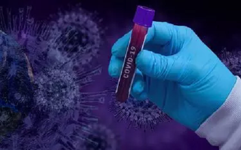 """Covid-19""""22 AVRIL 2021"""" : 0 décès, 17 contaminations et 13 guérisons"""