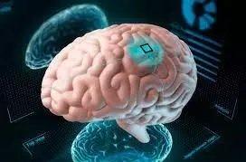 Une victime d'AVC réussit à communiquer grâce à un implant cérébral