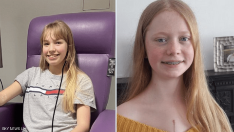 آنا أول طفلة في العالم خضعت للعملية الجراحية