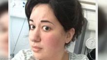 إميلي سودلو خضعت لجراحة في الدماغ بدون تخدير