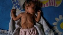 طفلة مصابة بسوء التغذية في فنزويلا (أرشيفية)